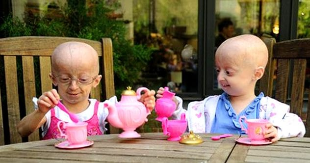abc_progeria6995_100902_ssh
