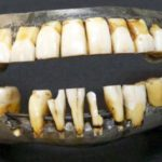 10 Horrors Of Dentistry Throughout History