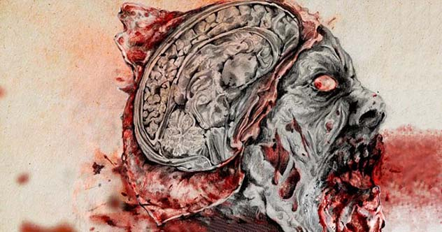 10 Frightening Facts About The Mysterious Deadly Prion Diseases