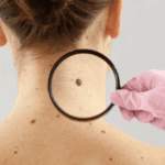 Top 10 Gross Things You Can Find On Your Body