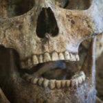 Top 10 Criminal Cases Involving Human Teeth